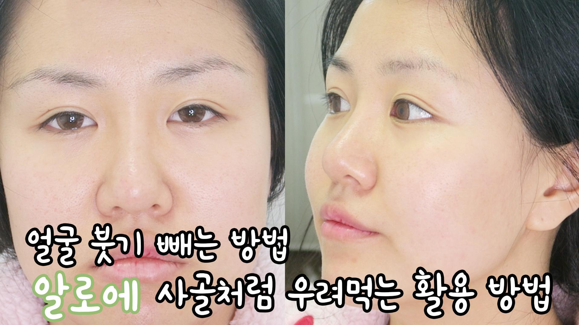 얼굴 붓기 빼는법, 알로에 사골처럼 우려먹는 활용법 How to Reduce Facial Swelling
