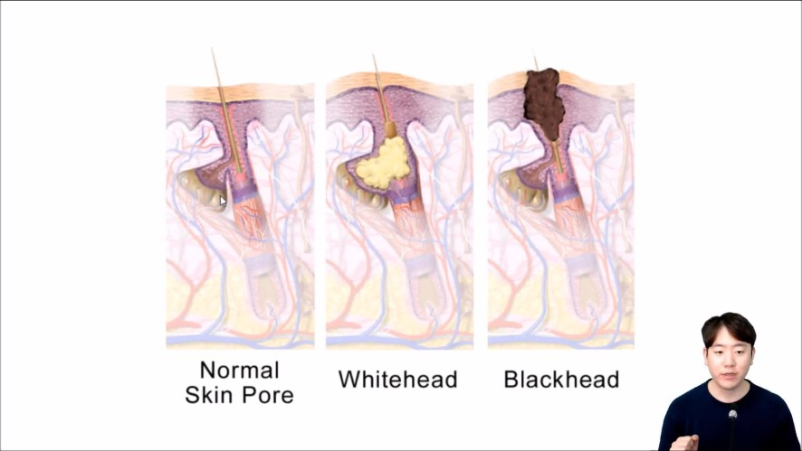 얼굴 피지 제거법 Ways to remove face sebum.