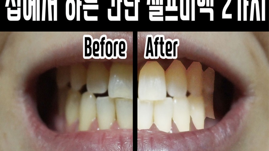 Tip)Simple beauty hacks for teeth whitening!