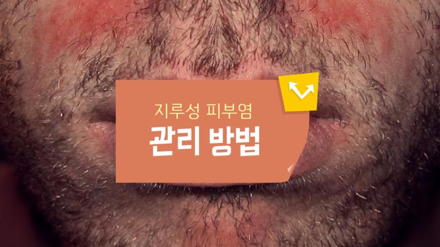 [1분팁] 지루피부염 관리 방법