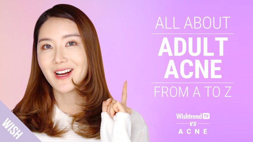 How To Completely Get Rid Of Adult Acne!   WishtrendTV vs ACNE