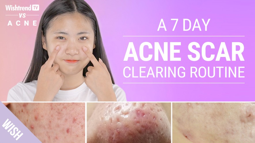 Acne Scars : How to Prevent & Quickly Remove Various Types | Wishtrend TV VS ACNE