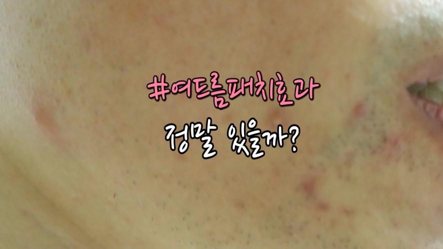 [1분팁] 여드름패치효과 4시간만에 나타날까?!  Are acne patches effective within 4 hours?!