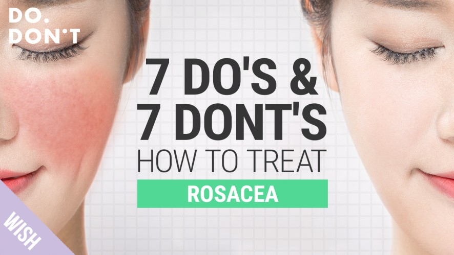 14 Tips for Rosacea That Really Work | Effective Skin Care Tips for Rosacea | Do&Don't