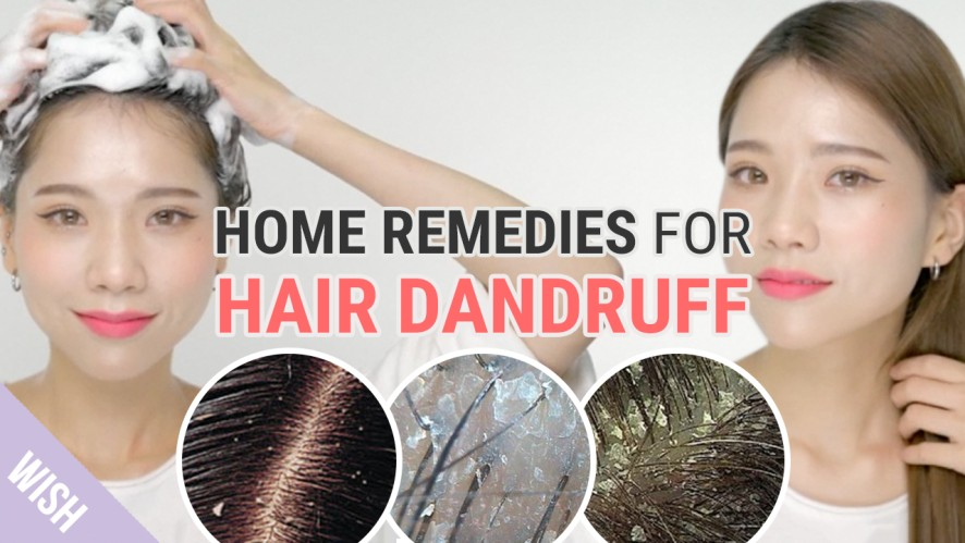 All about Hair Dandruff! | Dandruff Removal Tips | What's TRENDing