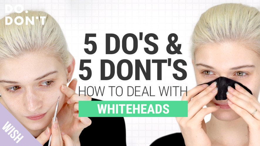 10 Must Know Tips If You Struggle With Whiteheads   How To Effectively Get Rid of Whiteheads