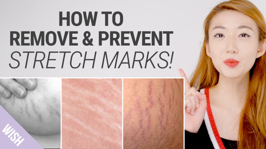 How To Get Rid of Stretch Marks Fast | Natural Remedies for Stretch Mark Removal | What's TRENDing