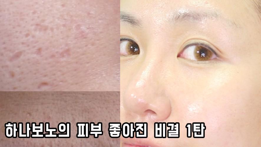 #여드름흉터 #여드름피부 하나보노의 피부 좋아진 비결 1탄  이것만 지켜줘도 좋아짐! The secret of skin improvement
