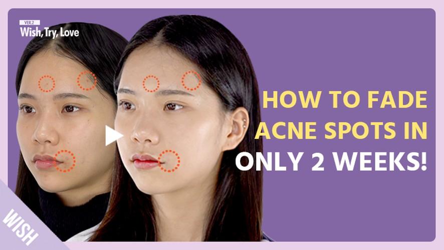 3 Secrets to Remove Acne Pigmentation & Brighten Skin Complexion in the Most Effective & Fast Way!