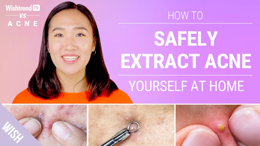Proper Acne Extraction Steps Without Leaving a Scar!   Wishtrend TV vs ACNE (Feat. Beauty Within)