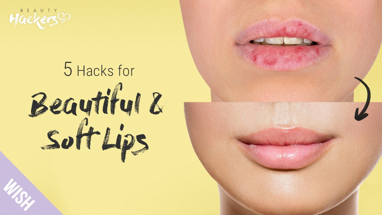 5 Secrets For Hydrated, Charming Lips Without Injections! | BeautyHACKers