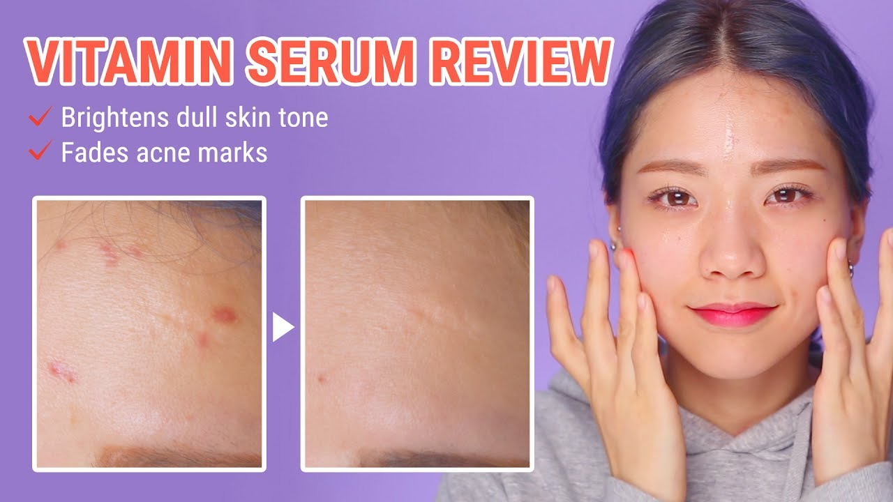 How To Fade Acne Scars In Just 2 Weeks | By Wishtrend Pure Vitamin C21.5 Advanced Serum