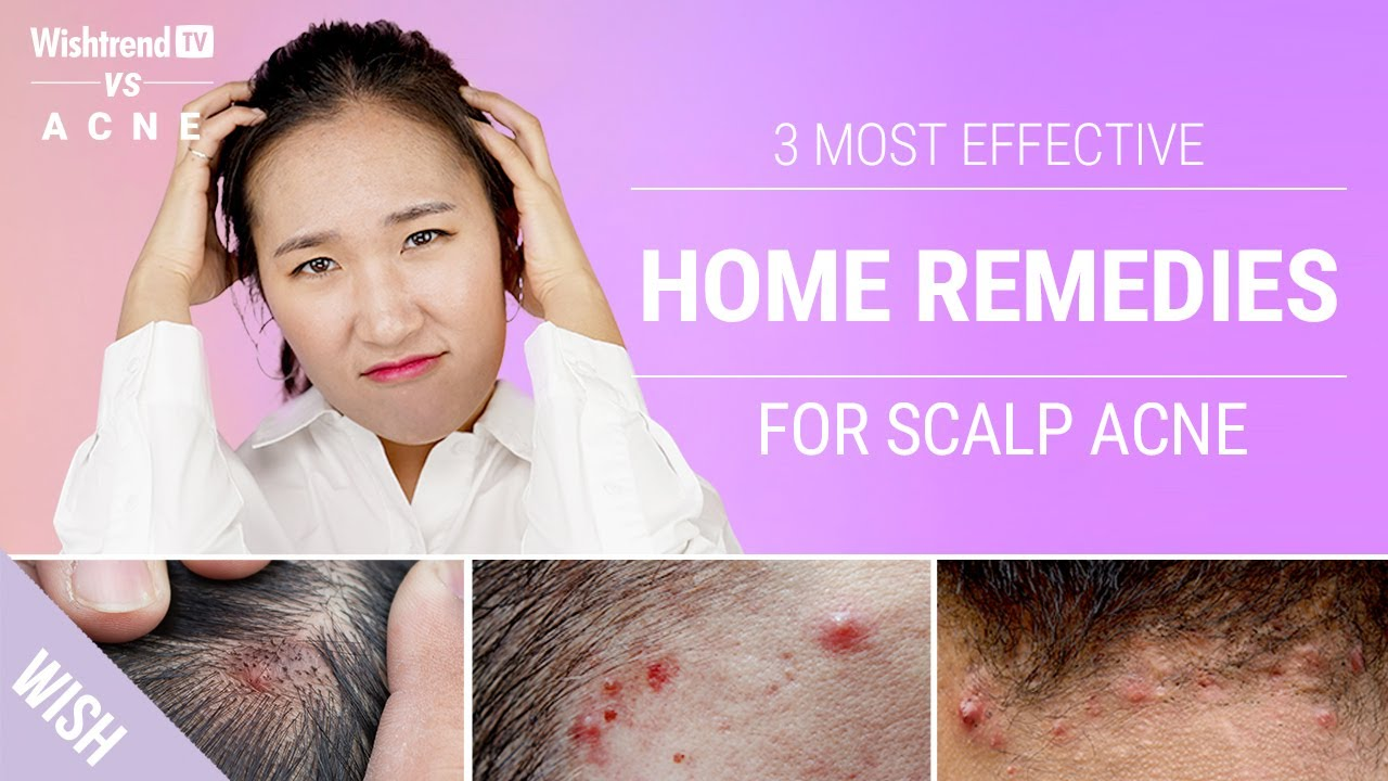 How to Get Rid of Scalp & Back of Neck Acne Naturally! | 3 Most Effective Home Remedies