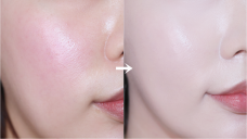 홍조커버하는법 꿀팁 공유해요 How to cover Redness skin ♥
