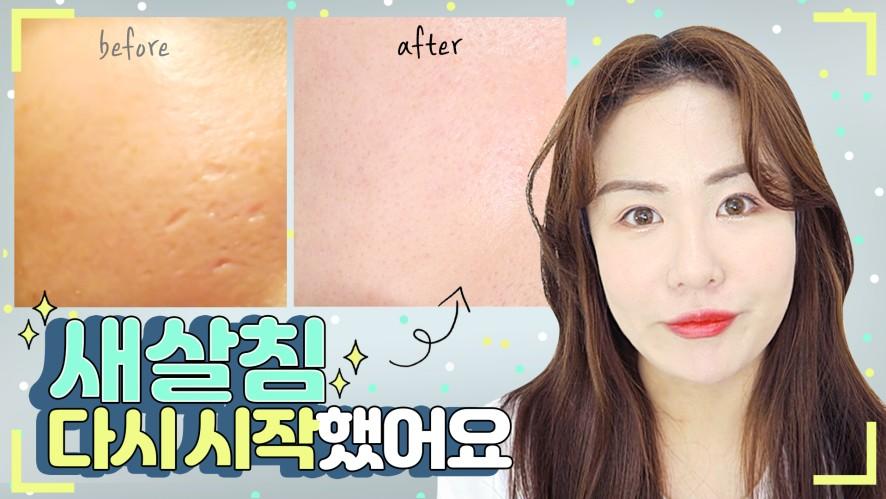 여드름패인흉터치료, 새살침, 코라테라피 다시시작했어요!Acne Scar Treatment