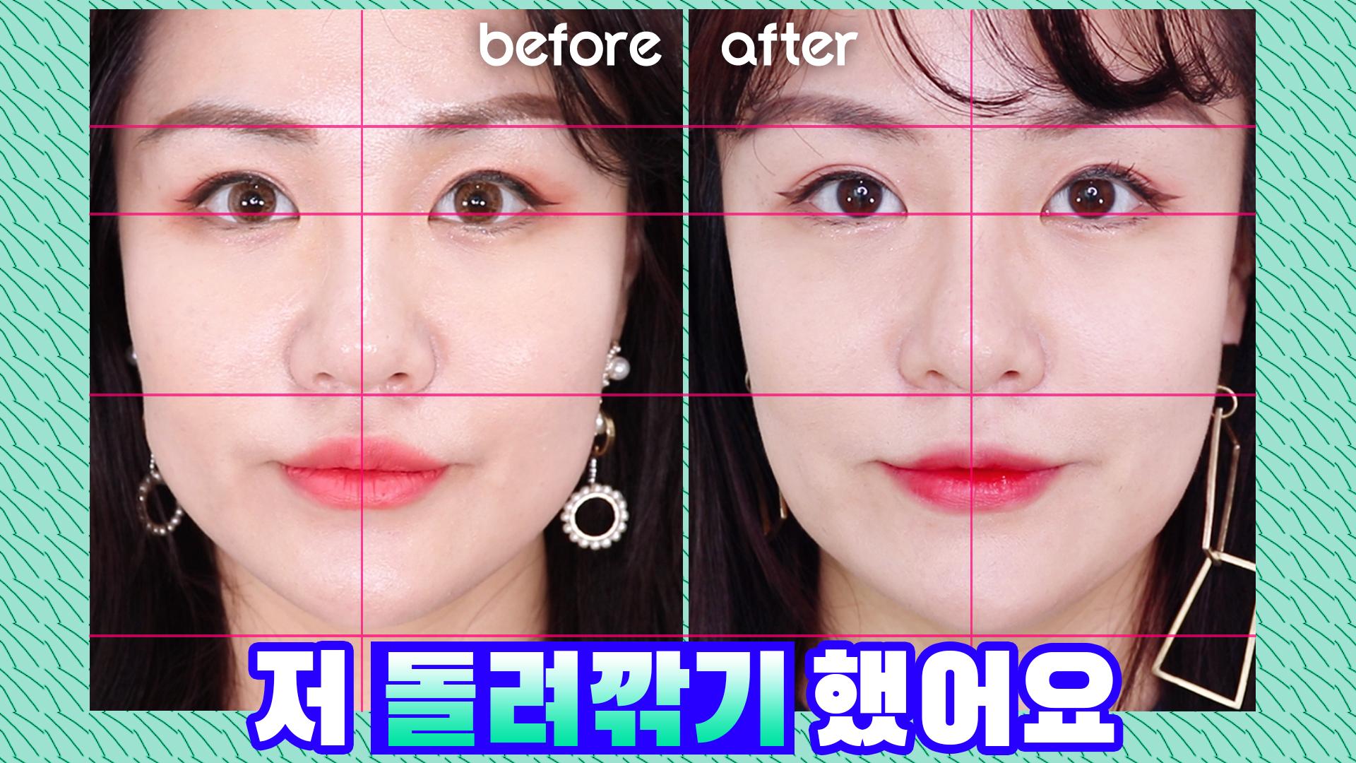 얼굴 돌려깎기 수준의 캣주사 후기, 얼굴살 확빠진 이유