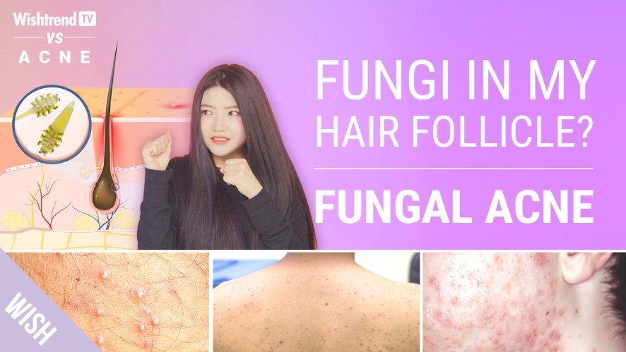 Does Your Acne Never Go Away? It Might NOT Be Acne l SAFE Skincare Routine For Fungal Acne