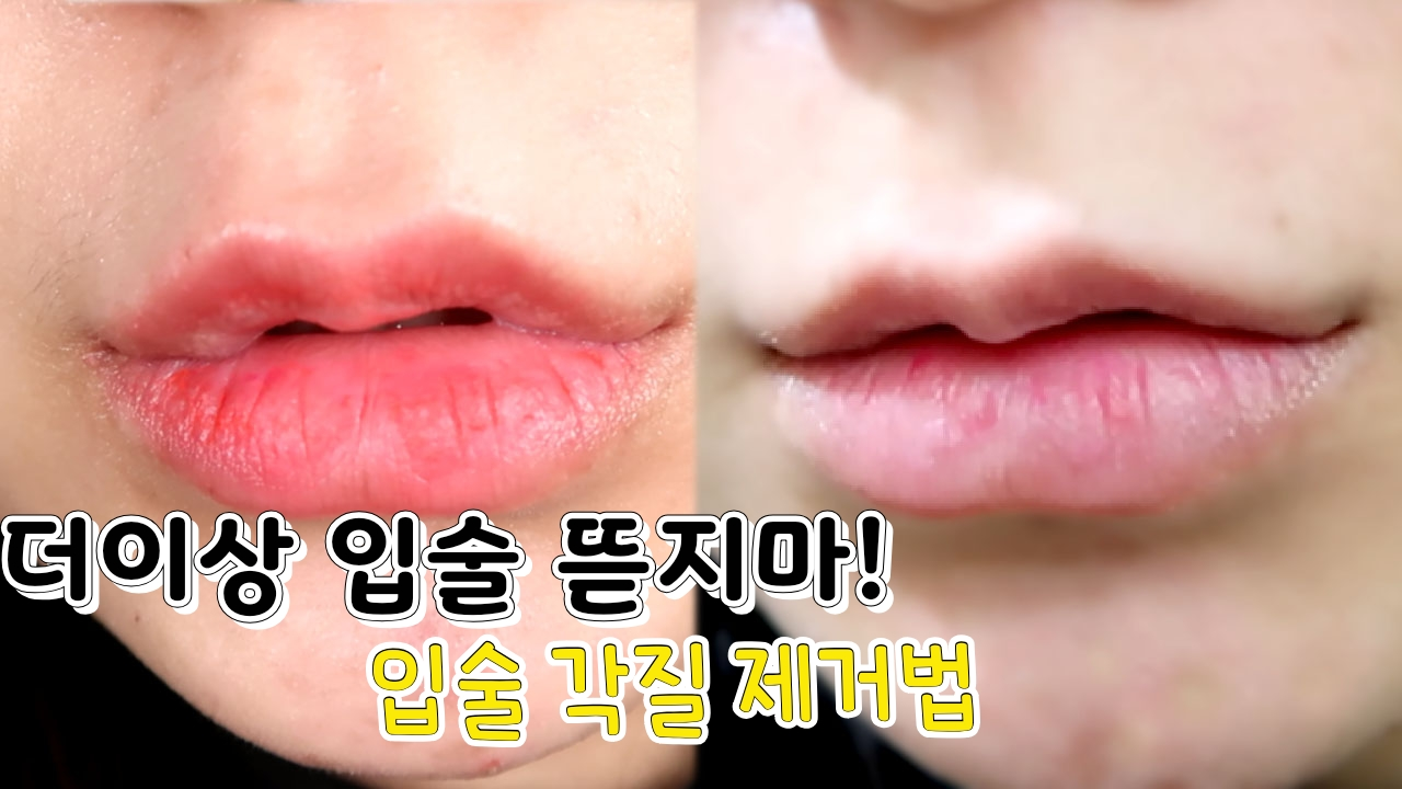 [1분팁]더이상 입술 뜯지마! 입술각질제거법 Don't tear one's lips anymore! Method of exfoliating your lip