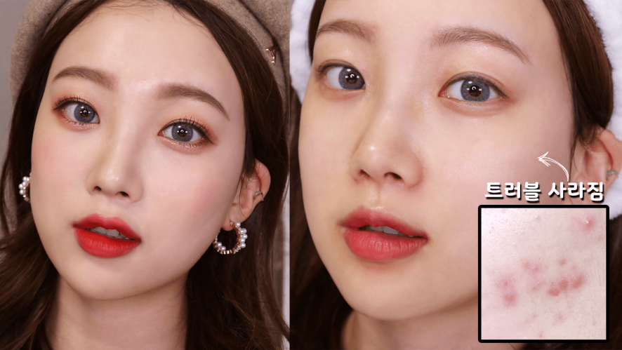 Skincare routine for troubled skin! (feat. holy grail toner, moisture ample)⎮SmileJ