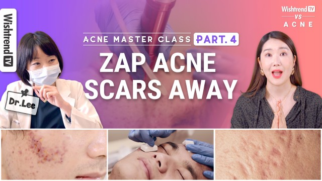 Acne Scar Treatment in Korea: Fraxel Lasers, Microneedling & Home Care TipsㅣPart4