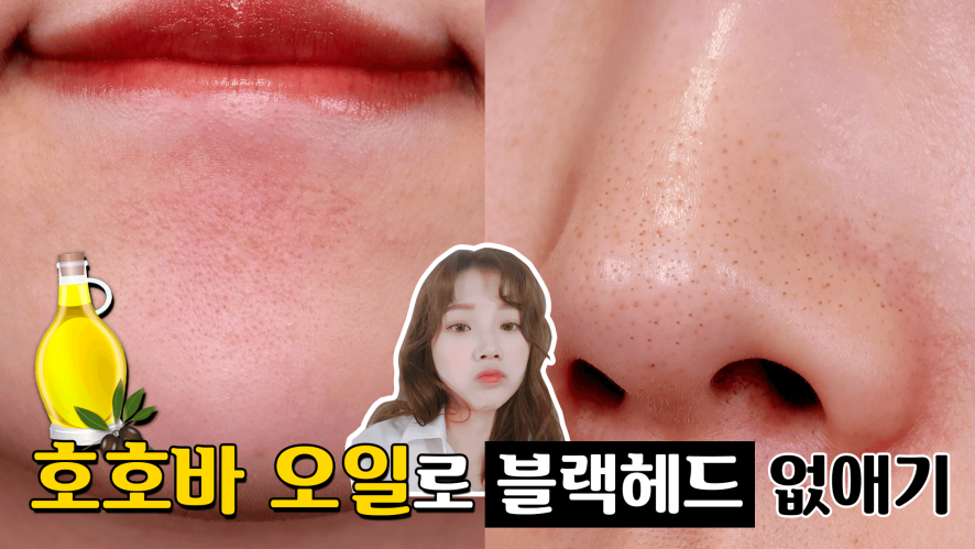 (NO광고) 호호바오일로 블랙헤드 + 턱 화이트헤드 없애는 방법 (피부좋아지는법) ⎮ 미소정 MisoJeong