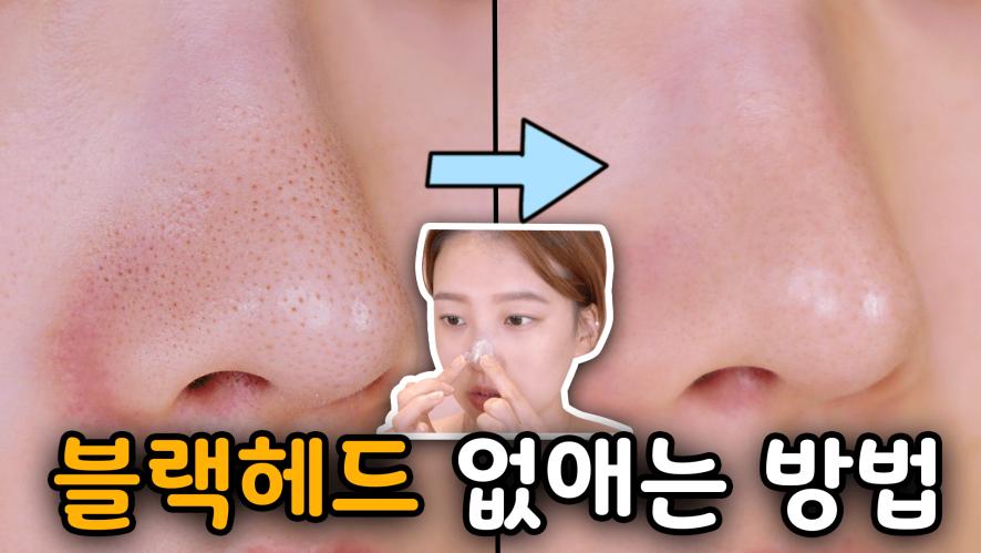 지긋지긋한 코 블랙헤드, 피지를 없애보자👃🏻 black head remover ⎮ 미소정 MisoJeong