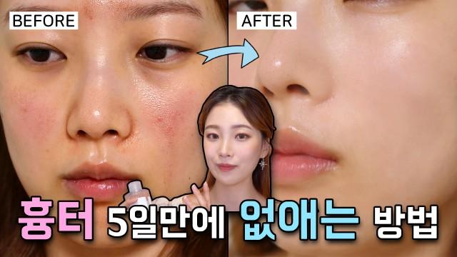 피부 화상이 단 5일단에 돌아온 홈 스킨케어 / 트러블 스킨케어 🌿 (올리브영 추천템)⎮ 미소정 MisoJeong
