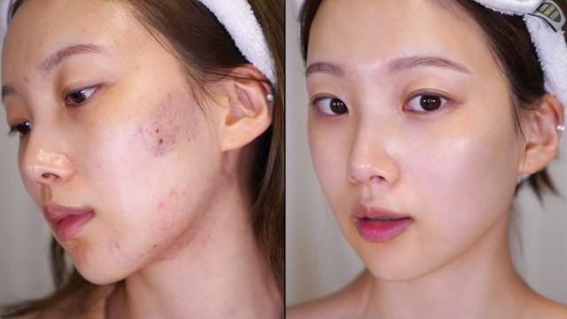 피부 좋아지는 루틴💫Skin care routine  (자극 받은 여드름피부 / 비건 스킨케어)