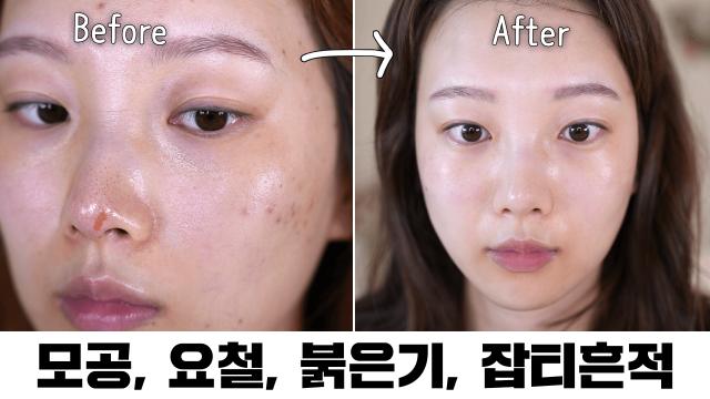 한달만에 집에서 모공/ 오돌토돌 피부결 케어하는 방법? (오돌토돌 피부결, 모공, 일시적 붉은기, 민감, 잡티흔적)